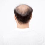 「全頭脱毛症」の原因とは?全頭脱毛症の症状と治療法