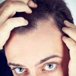 植毛の値段はいくら?頭髪タイプ別の植毛費用