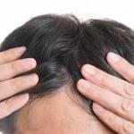 前髪・おでこの生え際、後退度チェック方法4つ