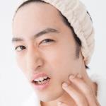 「脂漏性脱毛症」の原因とは?脂漏性脱毛症の症状と治療法