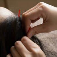 鍼(はり)で育毛できる?!鍼灸育毛の効果・治療・注意点を徹底解説!