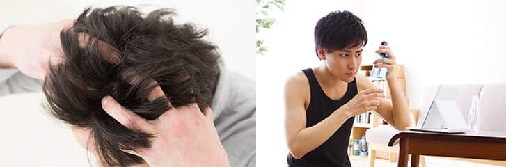 頭皮ケアで育毛対策